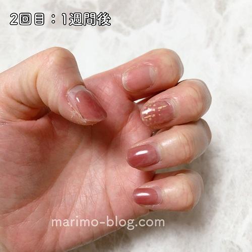 zinipin(ジニピン)の持ち検証:1週間後変色と剥がれる